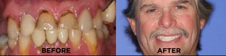 snap on smile results issaquah